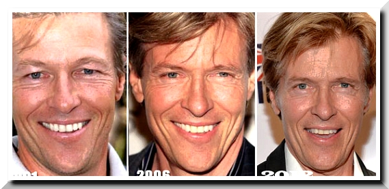 Jack Wagner, A Desire to be Youthful which was Poorly Done